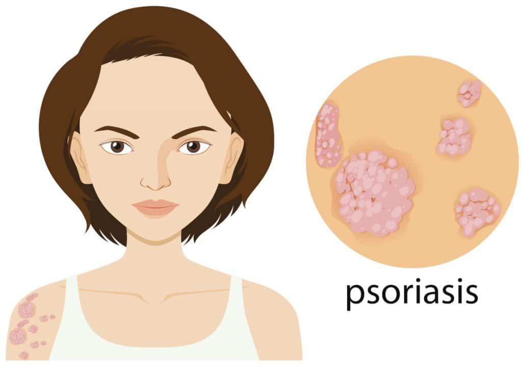 Psoriasi malattia autoimmune Dermatologia
