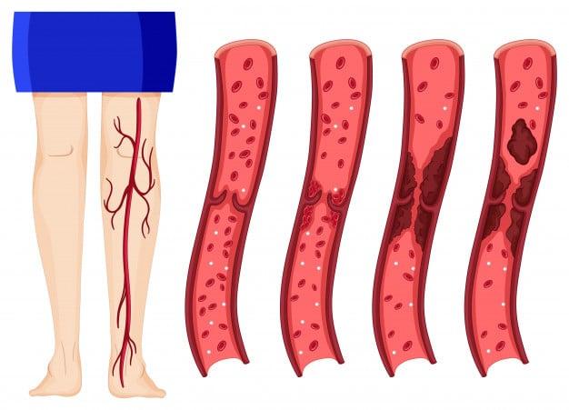 Trombosi alla gamba